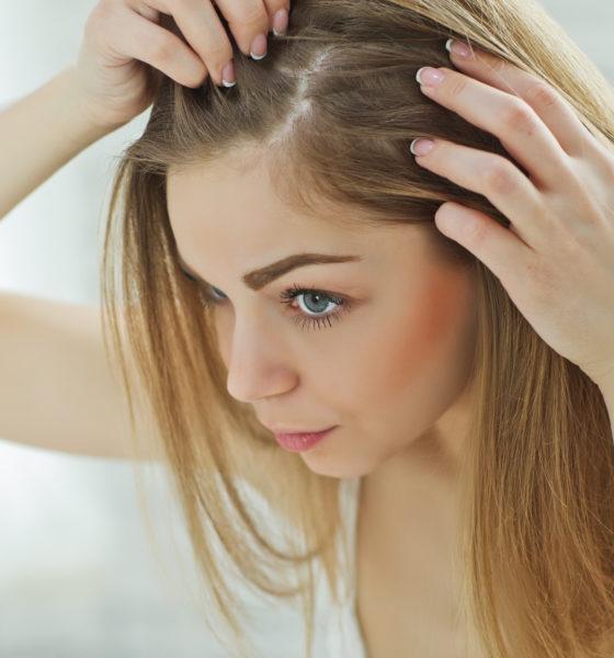 Kadın tipi saç dökülmesine son verin!