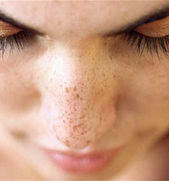 C vitaminli serumla cildinizi canlandırın!